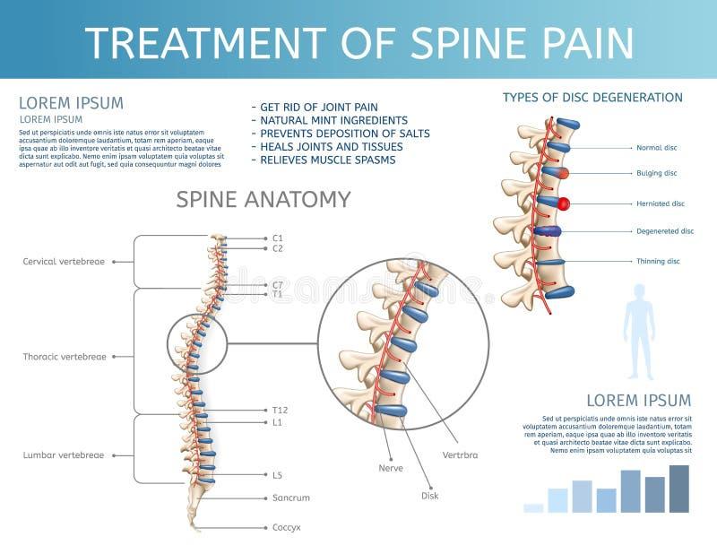 Traitement de vecteur de douleur d'épine Anatomie d'épine illustration stock