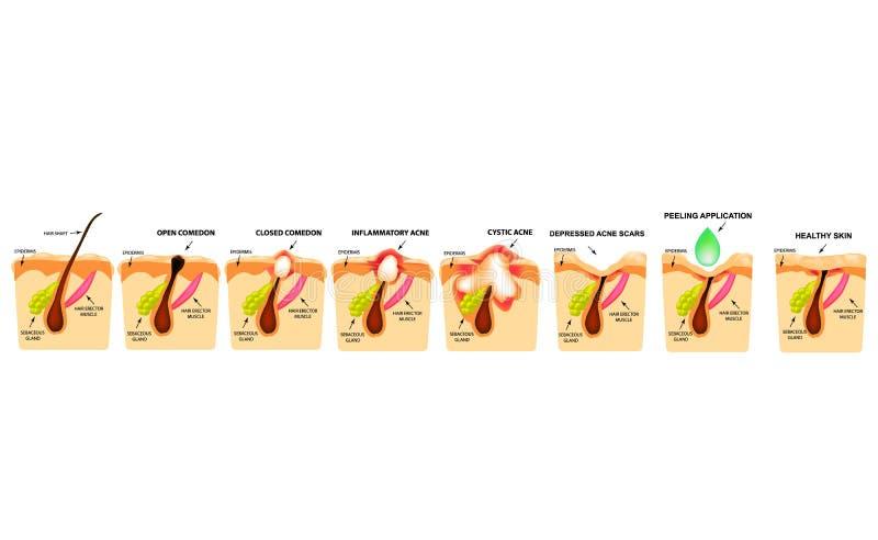 Traitement des comedones ouverts, acné enflammée, kystes d'acné Acné endolorie La structure de la peau Traitement des cicatrices  illustration stock