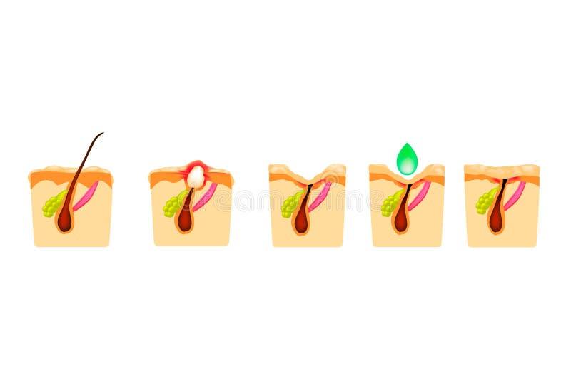 Traitement des comedones ouverts, acné enflammée, kystes d'acné Acné endolorie La structure de la peau Traitement des cicatrices  illustration libre de droits