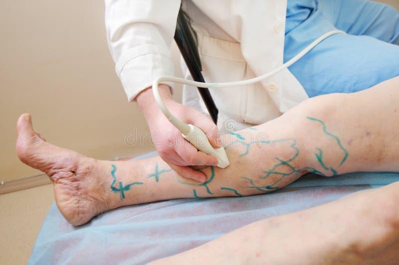 Traitement médical photo libre de droits