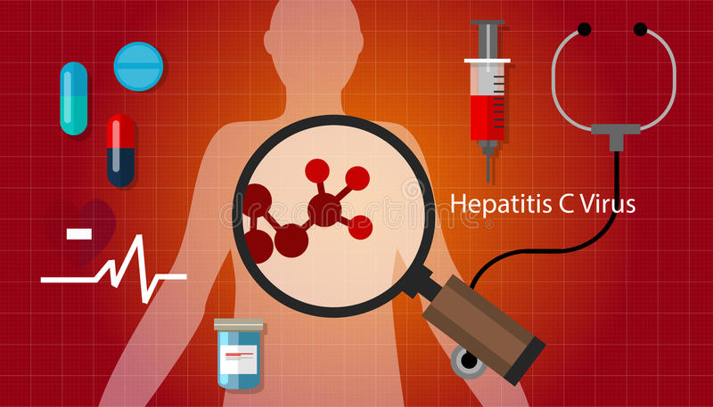 Traitement médical de santé d'affection hépatique de virus de l'hépatite c de Hcv illustration de vecteur