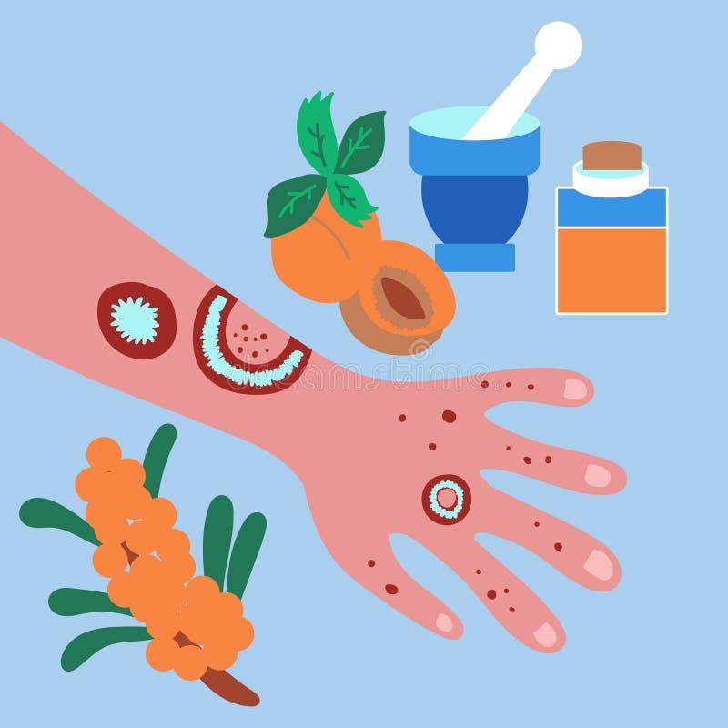 Traktowanie łuszczyca i egzema w domu Morela, dennego buckthorn oleje medicated oleje ilustracji