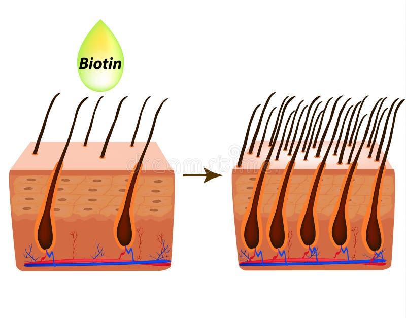 traktowanie alopecia Witaminy włosiane biotin Seborrhea włosy i skóra Dandruff, seborrheic dermatitis Baldness, włosy royalty ilustracja