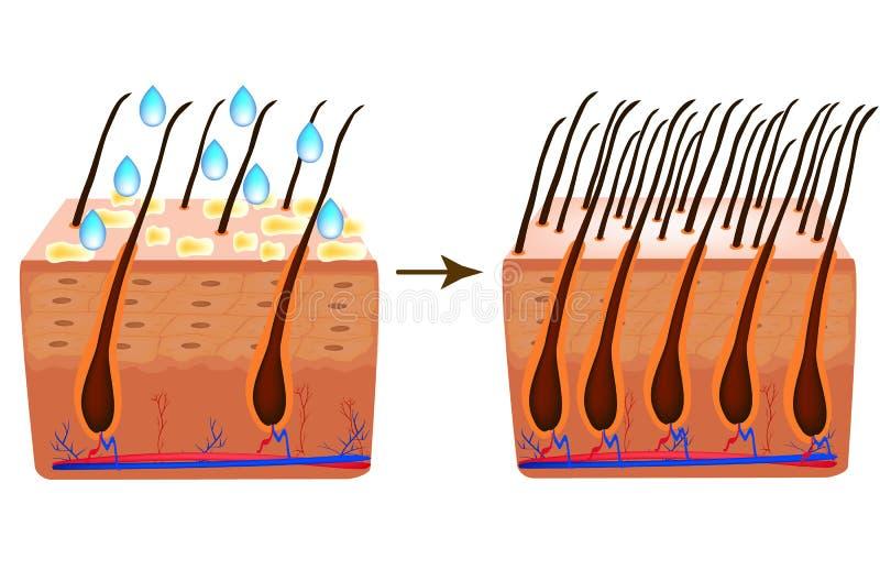 traktowanie alopecia Witaminy w?osiane biotin Seborrhea w?osy i sk?ra Dandruff, seborrheic dermatitis Baldness, w?osy ilustracji