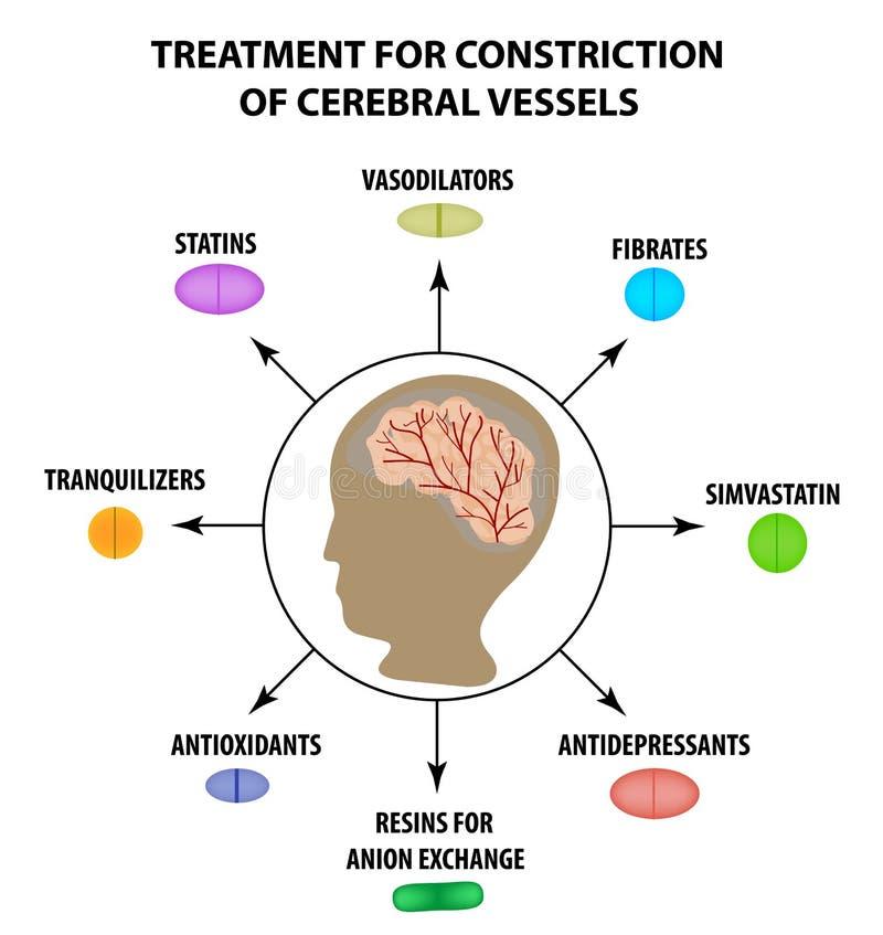 Traktowanie cerebralny naczyniasty constriction Światowy uderzenie dzień Infographics Wektorowa ilustracja na odosobnionym tle ilustracja wektor