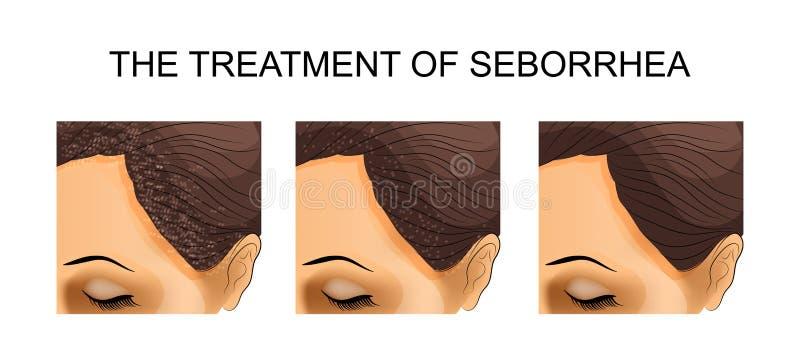 Traktowanie seborrhea Before and after ilustracji