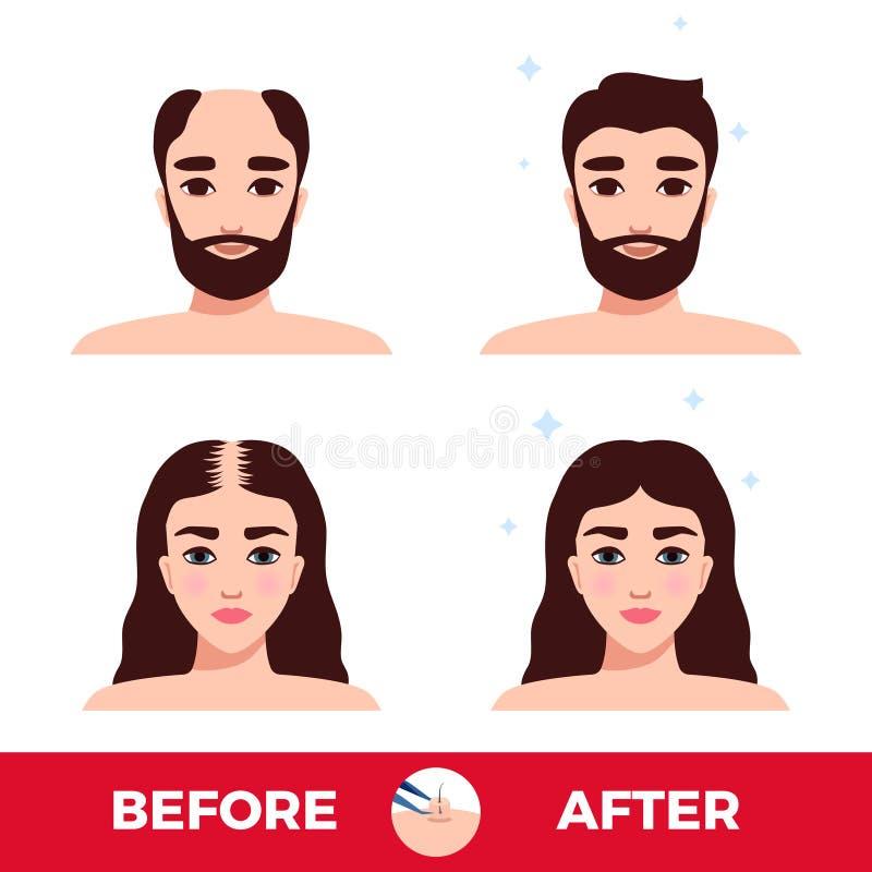 Transplantação do cabelo antes e depois ilustração do vetor