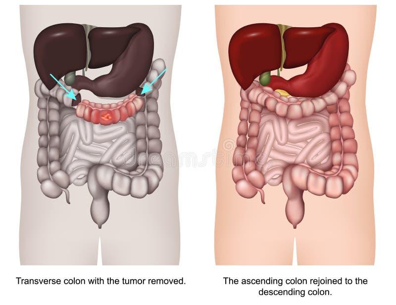 Transversale colectomy 3d medische vectorillustratie vector illustratie