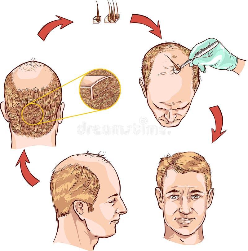 Trapianto dei capelli illustrazione di stock