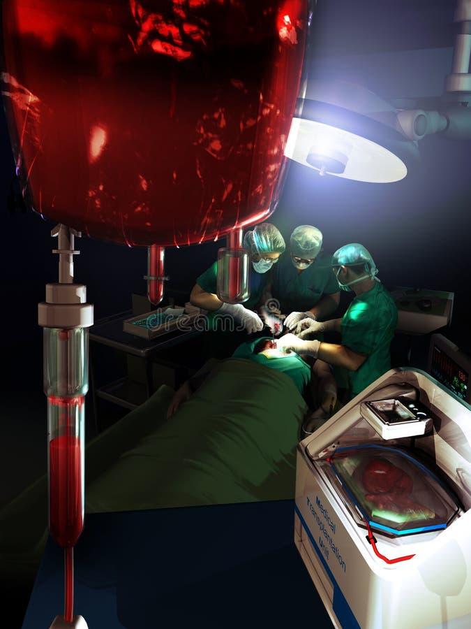 Trapianto medico illustrazione vettoriale