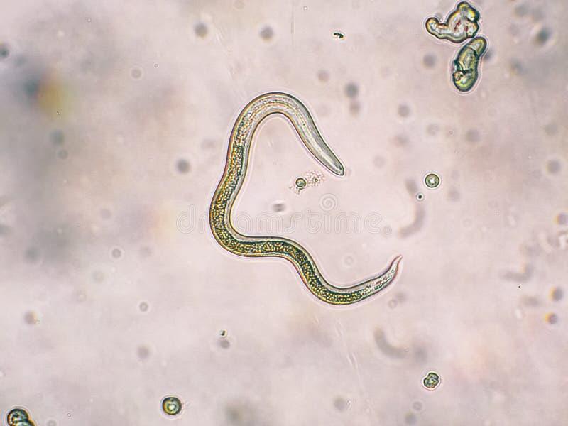 Trappe de larves de seconde étape de canis de Toxocara des oeufs photo libre de droits