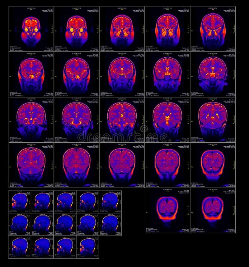 Trasparenza reale del cervello MRI di una ragazza fotografia stock libera da diritti