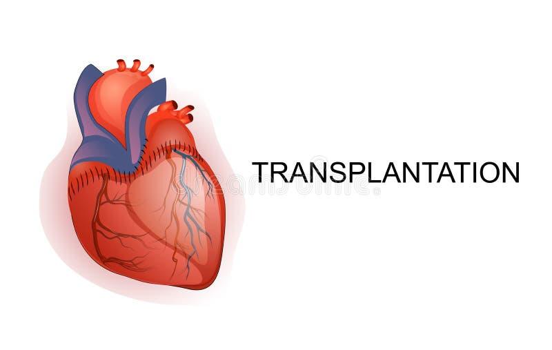 Trasplante del órgano Corazón Carrocería parts ilustración del vector