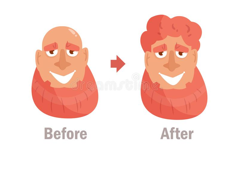 Trasplante del pelo, peluca Vector stock de ilustración