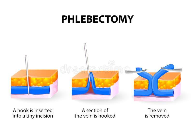 Tratamento ambulatório de Phlebectomy ilustração do vetor