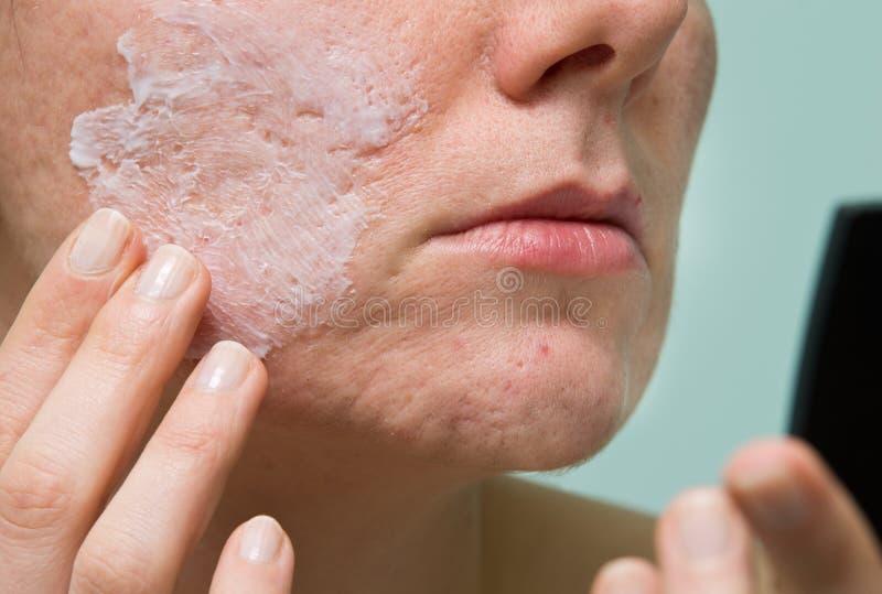 Tratamento da acne fotos de stock