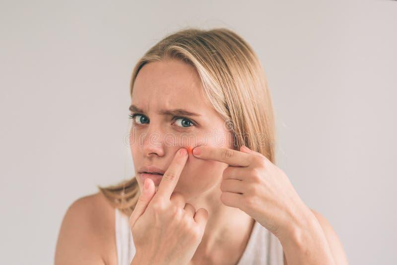 Tratamento da acne mulher da acne Jovem mulher que espreme sua espinha, removendo a espinha de sua cara Conceito do cuidado de pe fotografia de stock