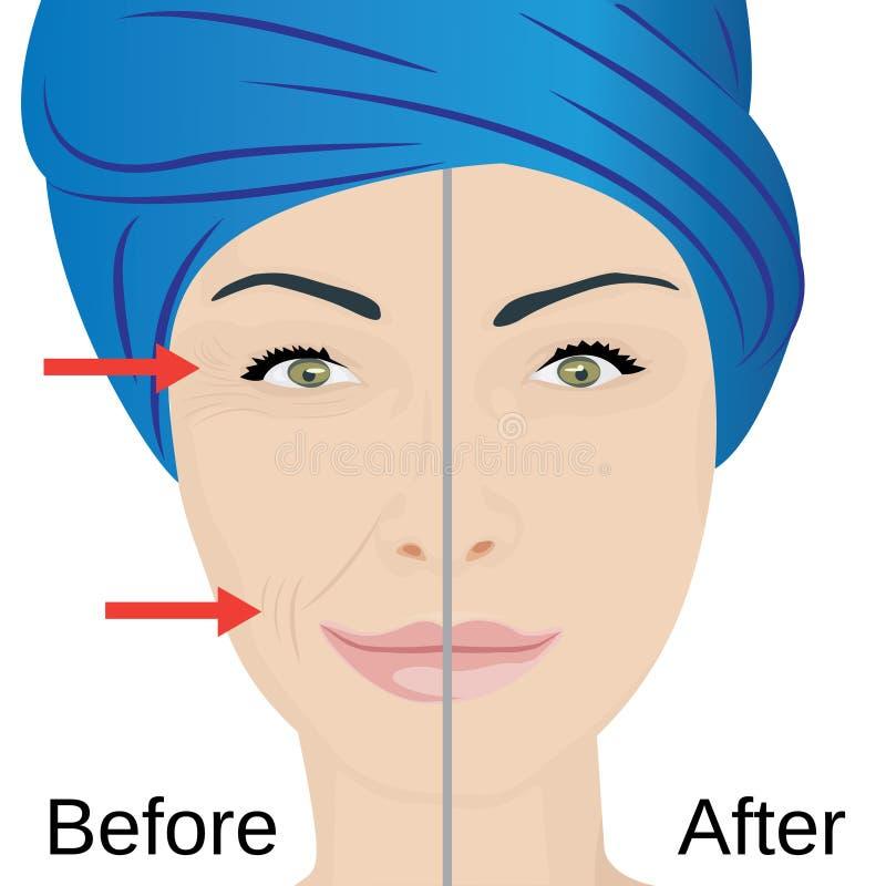 Tratamento da cara do envelhecimento Antes e depois ilustração royalty free
