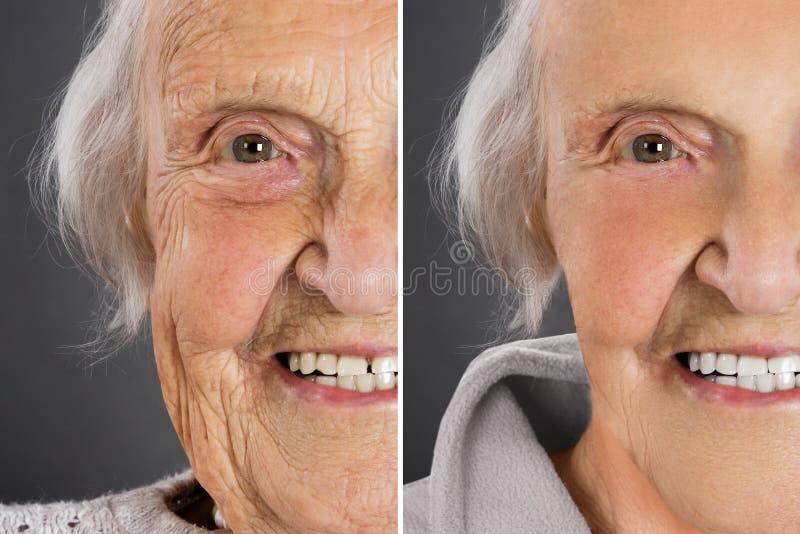 Tratamento da pele antes e depois imagens de stock