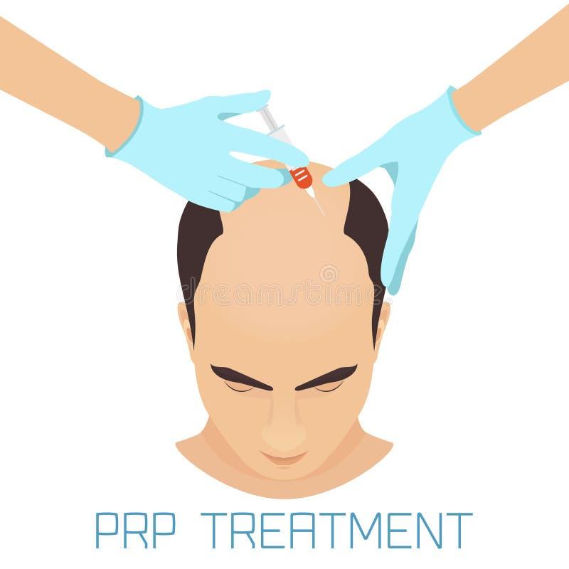 Tratamento de PRP para homens ilustração royalty free