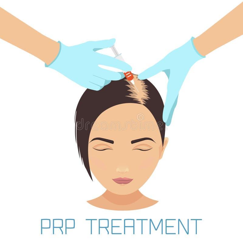 Tratamento de PRP para a queda de cabelo ilustração stock