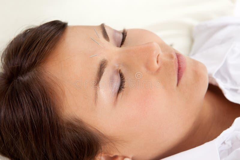 Tratamento facial da acupunctura fotografia de stock