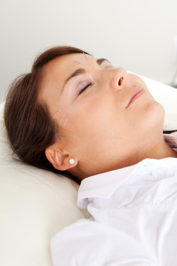 Tratamento facial da acupuntura da beleza fotografia de stock