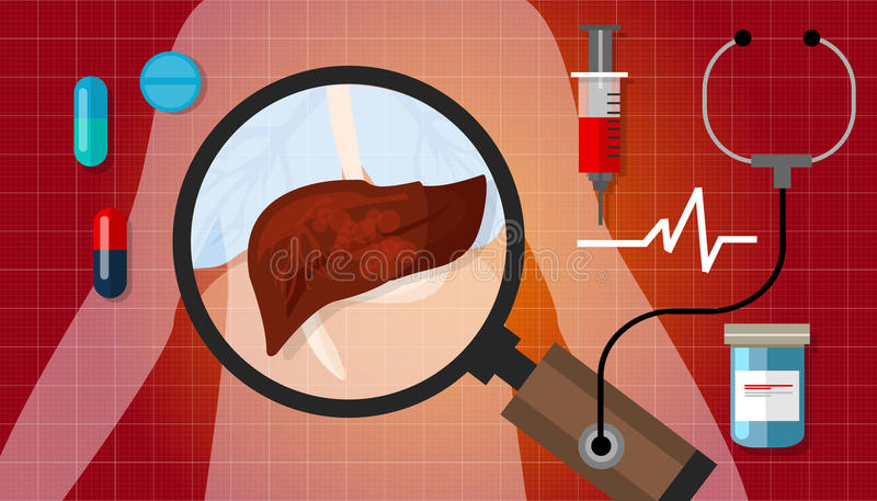 Tratamento insalubre doente da anatomia humana da ilustração da doença do câncer do fígado médico ilustração do vetor