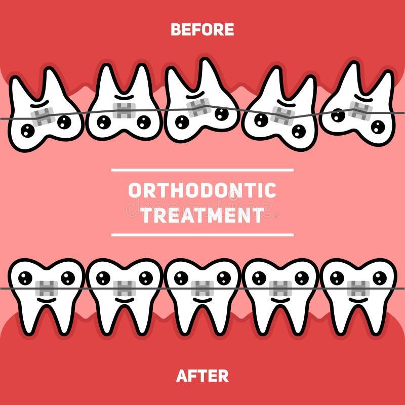 Tratamento ortodôntico, cintas dos dentes, ilustração do vetor antes e depois ilustração royalty free