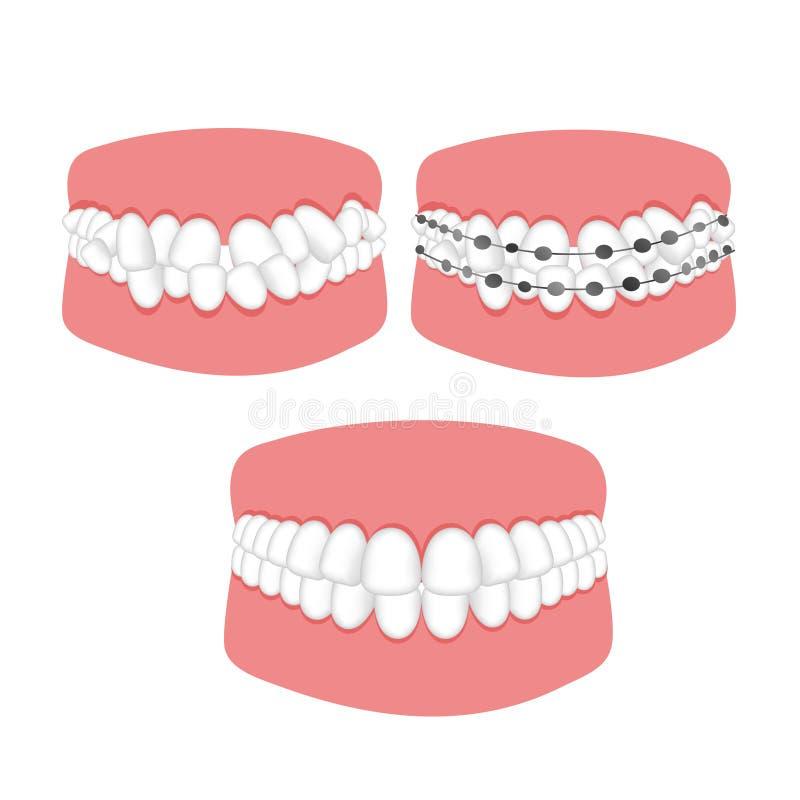 Tratamento ortodôntico do malocclusion das cintas dos dentes ilustração stock