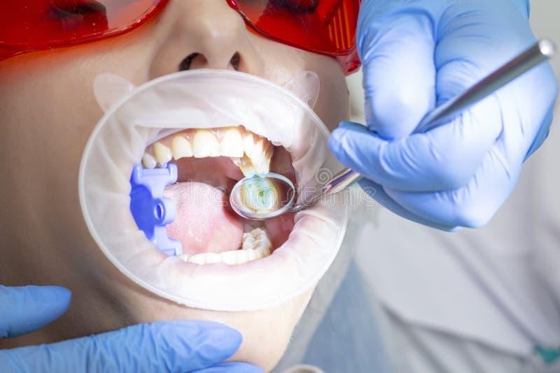 Tratamiento de la caries la muchacha en la recepción en el dentista que el doctor perforó una máquina del boro del diente quitó l fotos de archivo