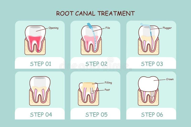 Tratamiento de la endodoncia del diente de la historieta ilustración del vector