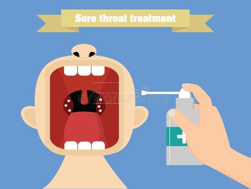 Tratamiento de la garganta dolorida con aerosol Ejemplo conceptual del tratamiento de Quinsy ilustración del vector