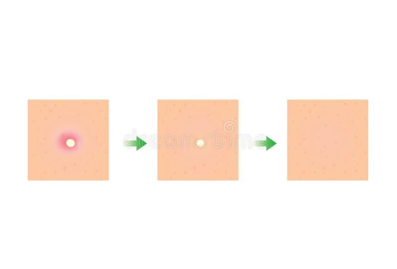 Tratamiento de la piel del acné stock de ilustración