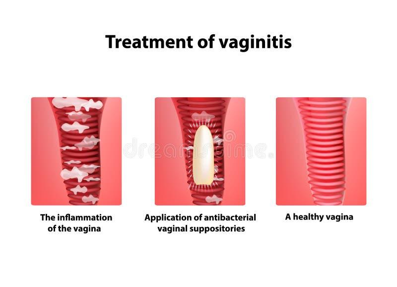 Tratamiento de los supositorios del vaginitis inflamación la vagina Infografía Ejemplo del vector en fondo libre illustration