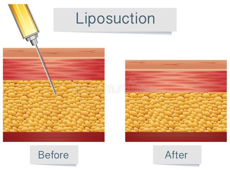 Tratamiento médico y comparación del Liposuction stock de ilustración