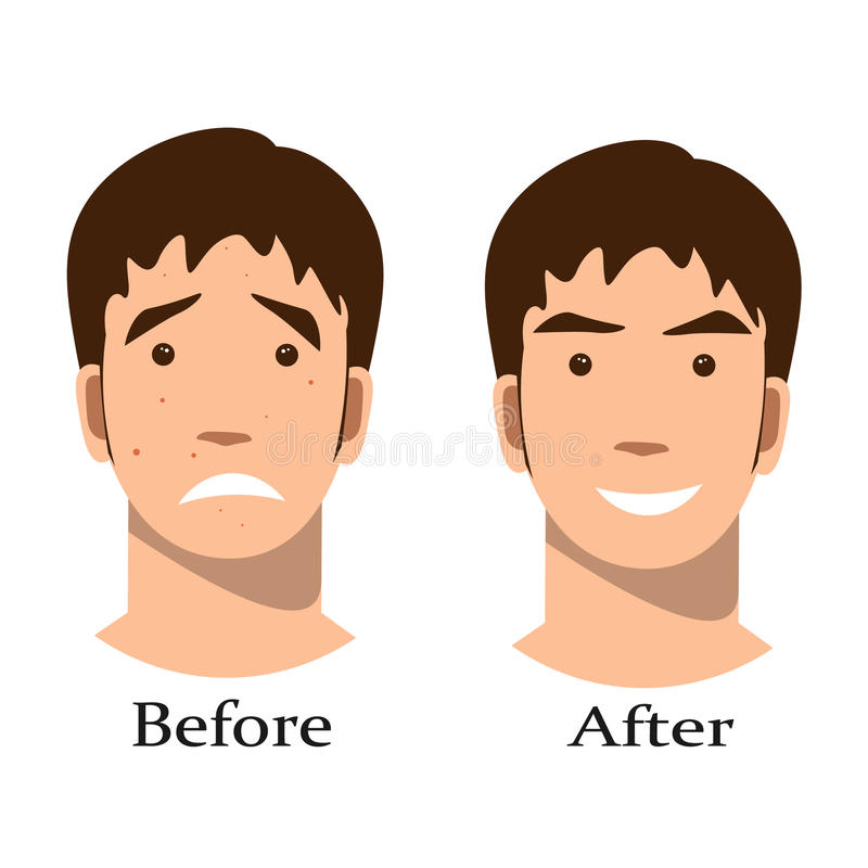 Trattamento dell'acne del ragazzo prima e dopo royalty illustrazione gratis