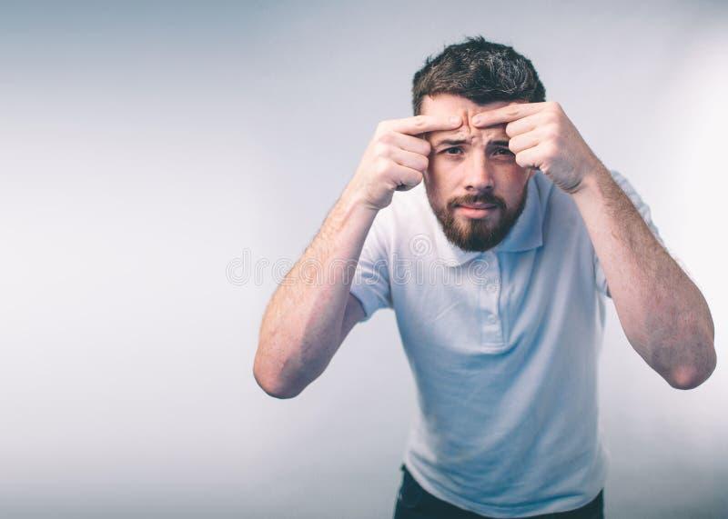 Trattamento dell'acne Uomo dell'acne che schiaccia il suo brufolo, rimuovente brufolo dal suo fronte Concetto di cura di pelle de fotografia stock libera da diritti
