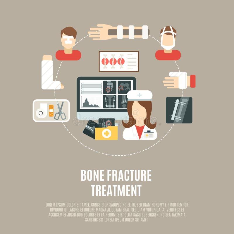 Trattamento dell'osso di frattura illustrazione di stock