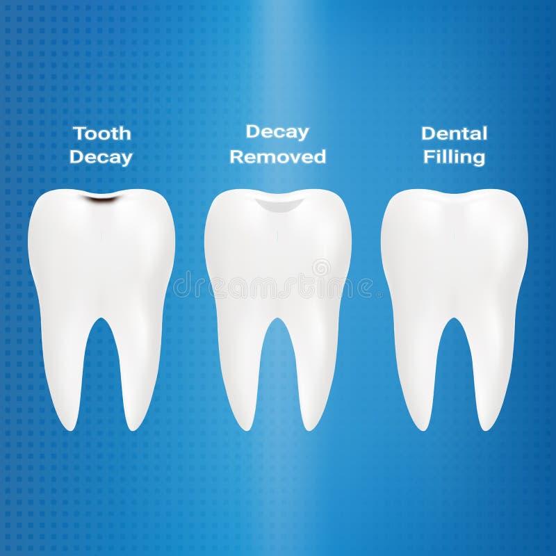 Trattamento della carie Materiale da otturazione dentario isolato su un fondo Illustrazione di vettore illustrazione vettoriale