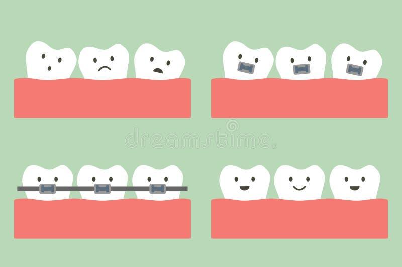 Trattamento dentario di ortodonzia con i ganci dei denti illustrazione vettoriale