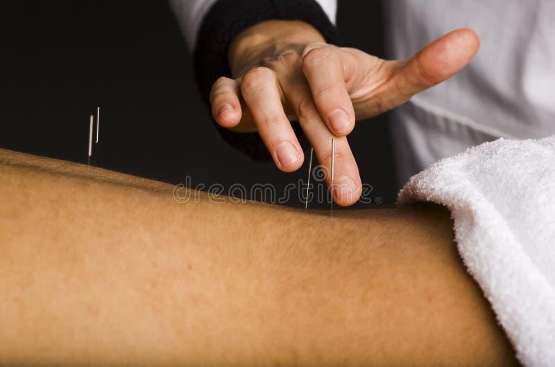 Trattamento di agopuntura alla parte posteriore del maschio fotografia stock libera da diritti