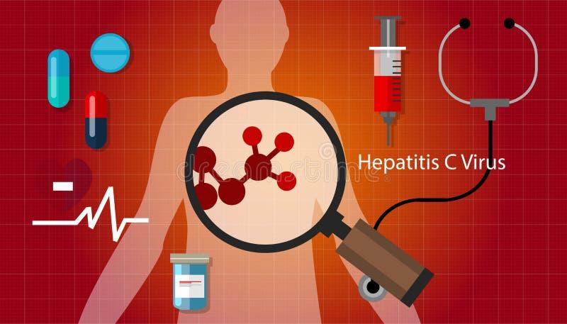 Trattamento medico di salute di affezione epatica del virus dell'epatite C di Hcv illustrazione vettoriale