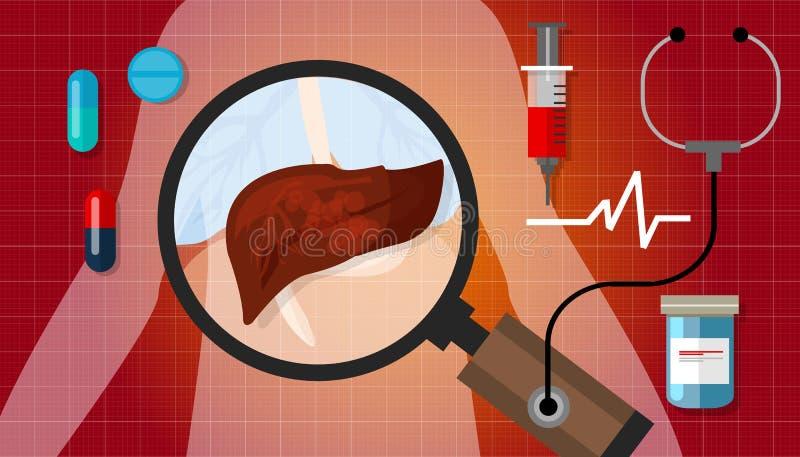 Trattamento non sano malato di anatomia umana dell'illustrazione di malattia del cancro del fegato medico illustrazione vettoriale