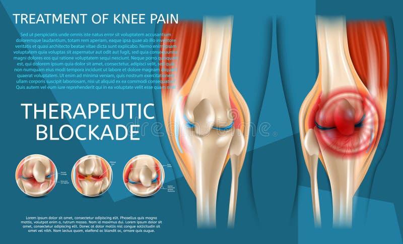 Trattamento realistico dell'illustrazione di dolore del ginocchio illustrazione vettoriale