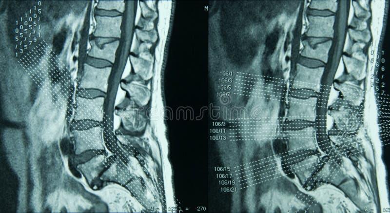 Tratto lombare della colonna vertebrale di MRI immagine stock