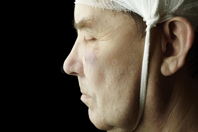 Download Trauma stock image. Image of caucasian, medical, injury - 12666065