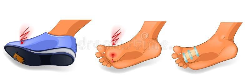 Trauma till foten spika i foten vektor illustrationer