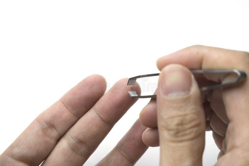 Trazione della scheggia dal dito usando le pinzette o delle tenaglie immagini stock libere da diritti