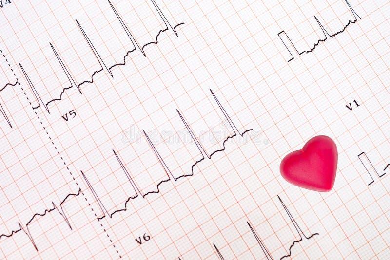 Trazo del ECG del corazón isquémico imágenes de archivo libres de regalías